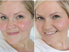 Ровный цвет лица без тонального! Супер эффективно!