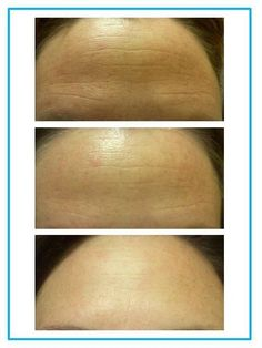 After just 60 days of anti-age Amp MD system...  kelseyturnage.myrandf.com