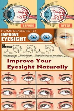 Nowadays, we are using our eyes to stare at small images and text on cell phones, computer screens, and televisions, which leads to an increase in age-related eye problems and eye fatigue. But decreased eyesight[. Health And Beauty Tips, Health And Wellness, Health Tips, Health Care, Natural Home Remedies, Natural Healing, Eye Sight Improvement, Healthy Eyes, Natural Medicine
