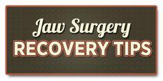 TMJ Surgery Recovery Arthrocentesis Arthroscopy Arthroplasty
