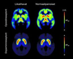 Obesity is associated with brain's neurotransmitters  Medical News Today
