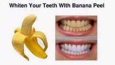 タダでホワイトニング?○○を使えば歯の黄ばみとサヨナラ!