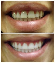 Philips Zoom WhiteSpeed is a teeth whitening procedure applied chair side. It is ideal for anyone looking for immediate results. The attached photos a. Zoom Whitening, Teeth Whitening Procedure, Dentist Reviews, Applique, Teeth Braces, Dental Assistant, Philips, Cosmetic Dentistry, White Teeth