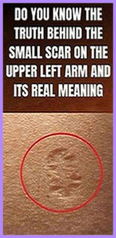 Do You Know The Truth Behind The Small Scar On The Upper Left Arm And Its Real Meaning Natural Life, Natural Living, Natural Healing, Natural Health Remedies, Herbal Remedies, Home Remedies, Get Healthy, Healthy Tips, Healthy Food