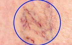 Некрасивые сосудистые «звездочки» на ногах доставляют многим женщинам массу неудобств. Неэстетичность внешнего вида вздувшихся вен на ногах – это лишь верхушка айсберга. На самом деле – это серьезное заболевание, нуждающееся в своевременном диагностировании, правильном лечении, выполнении всех рекомендаций врача. В народной медицине также есть довольно эффективные и безопасные способы избавления от сосудистых звездочек, которыми можно […]