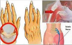 Pilonidal Cyst, La Constipation, Juvenile Arthritis, Matcha Benefits, Relieve Back Pain, Psoriatic Arthritis, Holistic Medicine, Autoimmune Disease, Pills