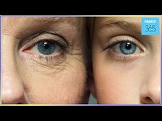 Oubliez le botox : le secret de la peau tendue avec ce masque naturel ! - France 365 - YouTube Les Rides, Stretch Marks, Anti Aging, Health Fitness, Hair Beauty, France, Youtube, Ayurveda, Beautiful