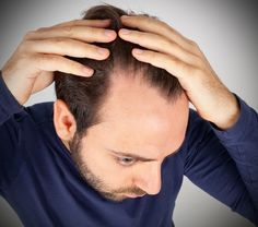 10 Natural Remedies To Prevent Hair Loss