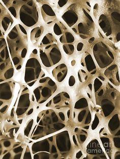 Sem Of Human Shin Bone Photograph by Science Source