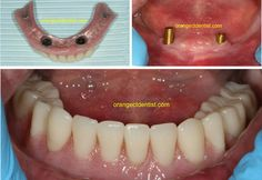 Implant Supported lower denture or overdenture. This patient went from a denture that moved incessantly to one that requires extreme hand coordination to remove! A life changing event! Dental Photos, Missing Teeth, Dental Services, Wood Bridge, Dental Implants, Life Changing, Orange, Tips