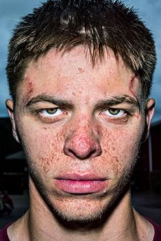 In your face: Bruce Gilden's extreme closeups – in pictures Face Photography, People Photography, Urban Photography, White Photography, Medical Photos, Photographs Of People, Poses, Portraits, Street Photographers