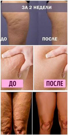 Cellulite will disappear magically! The older pro . - - My MartoKizza Health Diet, Health And Nutrition, Best Healthy Diet, Pin On, Varicose Veins, Fitness Nutrition, Weight Loss Transformation, How To Lose Weight Fast, At Home Workouts