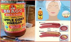 Find Out Why Apple Cider Vinegar Is The Remedy For Everything But Death