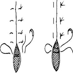 Vertical (L) and Horizontal (R) Suture- results in eversion of tissues