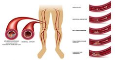 The Signs Of Bad Blood Flow And Clogged Arteries – Do This