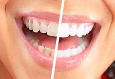 Želite zube kao iz reklame? Sipajte samo jedan sastojak u popularni topli napitak | Zdravlje | Žena