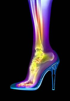 Research shows that with a high heel shoe, once the heel is over about 2.5 inches, the majority of the weight is transferred to the front part of the foot.