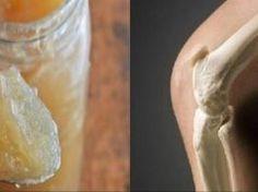 arthritis knee pain remedies, kinds of solutions and methods to decrease knee discomfort or treatment towards knee arthritis Natural Treatments, Natural Remedies, Causes Of Back Pain, Knee Arthritis, Rheumatoid Arthritis, Bone And Joint, Knee Pain, Natural Medicine, Healthy Tips