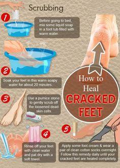 Cracked Feet - 5 Grandma's Home Remedies