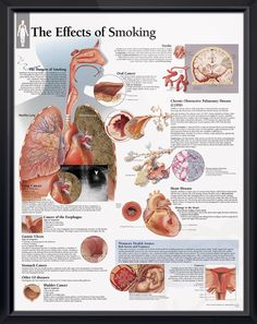 The Effects of Smoking anatomy poster provides a comprehensive overview of damaging outcomes from cigarette smoking. Pulmonology chart for doctors and nurses.