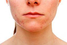 Akne Gesichtspflege