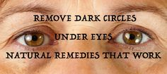 Remove Dark Circles Under Eyes: Lifestyle changes, Home Remedies, Ayurvedic Remedies and Yoga #MotherOfHealth