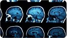 set of MRI scans on black - stock photo Epilepsy Research, Epilepsy Awareness Month, Autism Research, Clinical Research, Omega 3, Microsoft, Brain Mapping, Brain Structure