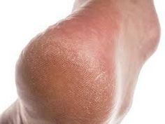 5 remedios caseros para talones y pies resecos y agrietados Part 1