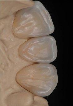 Порцеланови корони - изглед отвътре