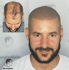 Scalp Remedies Scalp micropigmentation the ultimate hair loss solution! Stop Hair Loss, Prevent Hair Loss, Causes Of Hair Fall, Scalp Tattoo, Scalp Micropigmentation, Hair Growth For Men, Male Pattern Baldness, Hair Falling Out, Short Hair