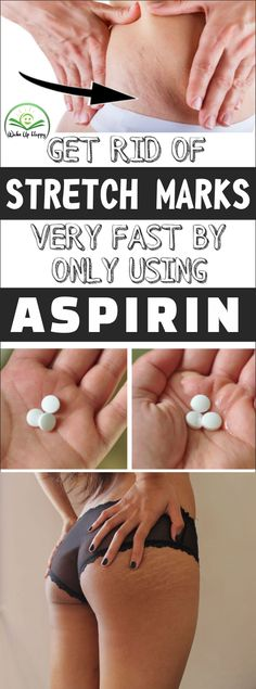 How to get rid of stretch marks very fast by using aspirin! aspirin stretch skincare skin how to grow taller faster naturally 47 tips Home Medicine, Natural Medicine, Herbal Medicine, Aspirin, Health Tips For Women, Health Advice, Home Health, Health And Wellness, Health Care