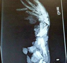 Meat grinder + your arm = scary xray. (SFW) - Imgur