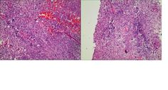 The incidence of Multiple Myeloma (MM) following other malignancies is extremely rare. To our knowledge, only 23 cases of this condition have been reported. This study is the first to report on an incidence of MM following bladder cancer after treatment with intravesical Pharmorubicin RD instillation in a 71-year-old male patient. The etiopathology of this specific condition is discussed with an emphasis on two pathogenic features, namely, anthracyclines and gene mutation