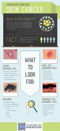 Understanding Skin Cancer - SkinCancer.org