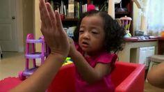 OT helps 2-year-old cancer survivor reach milestones (Cayman 27)