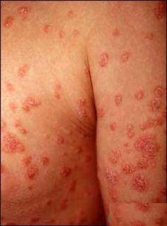 Melanoma Skin Cancer Causes