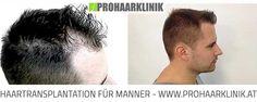 Haartransplantation Frankfurt