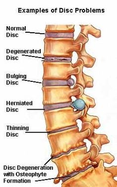 disc problems labeled normal degenerated bulging herniated thinning osteophyte formation color drawing