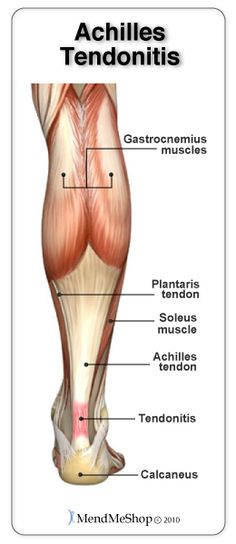 Achilles Tendonitis - Causes, Symptoms, and Treatment Options. Causes of Achilles Tendonitis can range from overuse to biomechanical issues with the feet. Tenderness, restriction of extensibility, and pain after period of rest or activity are hallmarks of Tendonitis Causes, Tendon D'achille, Achilles Tendon, Wellness Fitness, Health And Wellness, Health Fitness, Keeping Healthy, Anatomy And Physiology, Human Anatomy