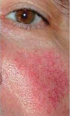 Intense Pulsed Light Rosacea treatment (IPL) may well be one of your best options - for certain types of rosacea. While being a relatively new form of laser treatment Rosacea Causes, Rosacea Remedies, Acne Rosacea, Skin Care Remedies, Natural Remedies, Whitening Cream For Face, Skin Tips, Health, Hair