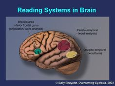 Brain Research Guides the Way for Dyslexia Causes and Treatment — Speech Language Literacy Lab