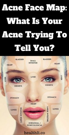 Acne Face Map: What Is Your Acne Trying To Tell You? – buzzing Health Clear Skin Health Remedies Health Tips Health For women Health Natural Health Tips Doterra Acne, Flat Lay Fotografie, Acne Reasons, Anti Aging, Make Up Tutorials, Face Mapping, Endocrine System, Hair Serum, Clean Face