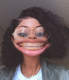 Braceface smile Philbin & Reinheimer Orthodontics in Annapolis, MD and Stevensville, Maryland. Cute Girls With Braces, Cute Braces Colors, Braces Smile, Teeth Braces, Gold Braces, Black Braces, Braces Tips, Curly Hair Styles, Natural Hair Styles