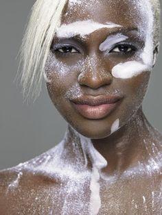 Skin Care    Coping With Vitiligo