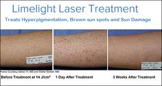 Sun exposure contributes to brown pigmentation spots on the skin which can appear on the face, arms, hands, shoulders and chest. #Limelight PhotoFacial is a non-invasive way to rejuvenate your skin. It improves skin tone and gives dramatic results for a age spots, sun-induced freckles, brown #pigmentation marks. Read out the FAQs about LimeLight Laser treatment and get the necessary aftercare guidelines for better results at Lanu Medi Spa. Wrinkle Treatment, Laser Treatment, Vein Removal, Age Spots On Face, Sun Damaged Skin, Happy Skin, Prevent Wrinkles, Skin Care Regimen, Smooth Skin