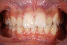SDB Studio Dentistico Balestro: Affollamento dentale