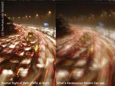 How Keratoconus sufferers see the world