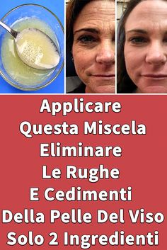 This natural recipe will help you Get Rid Of Wrinkles And Sagging Skin On The Face. It helps in tightening skin and gives a younger look that will last long. Home Remedies For Wrinkles, Under Eye Wrinkles, Face Wrinkles, Natural Wrinkle Remedies, Sagging Face, Look Plus, Skin Tightening, Facial Care, Menopause