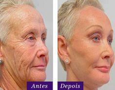 Novo Botox em Creme não usa agulhas, Rejuvenesce 10 Anos em Apenas 2 minutos e vira a Nova Febre entre as Celebridades!