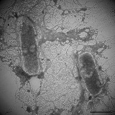 Flavobacterium squillarum  [000.003.355]